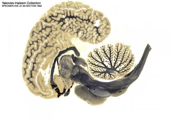 tranche-cerveau-dophin-01.jpg