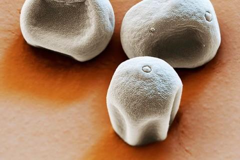 grain-pollen-microscope-electronique-allergie-01.jpg