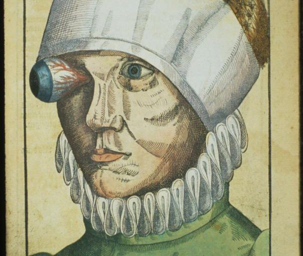 Ophthalmodouleia-livre-ancien-chirurgie-oeil-ophtalmologie-00.jpg