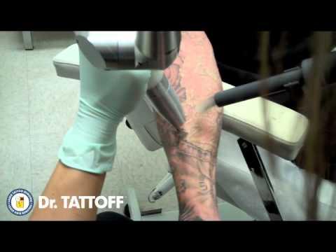 Comment enlever un tatouage