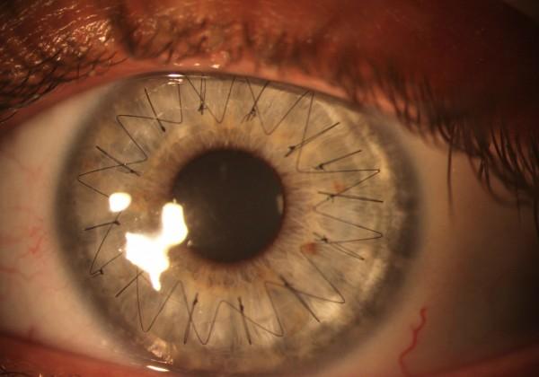 point-suture-oeil-greffe-cornee