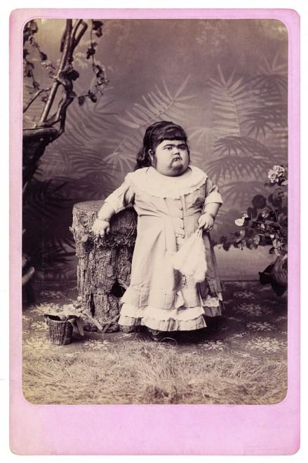 freaks phenomene foire 04 439x660 Des phénomènes de foire dans les années 1870