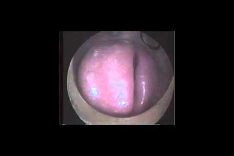 La bouche d'un tromboniste pendant qu'il joue