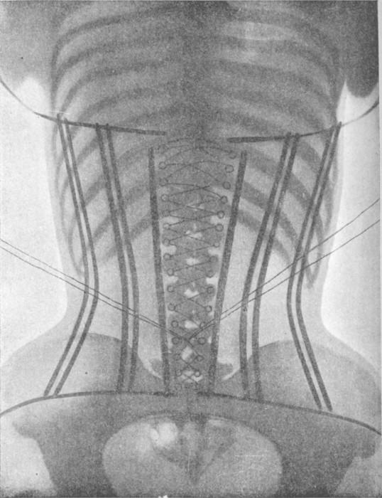 radio corset 01 538x700 Les corsets de 1908 au rayons X  technologie histoire bonus