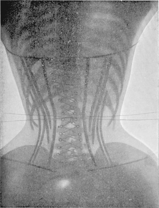 radio corset 02 535x700 Les corsets de 1908 au rayons X  technologie histoire bonus