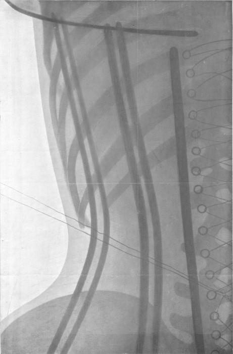 radio corset 03 461x700 Les corsets de 1908 au rayons X  technologie histoire bonus