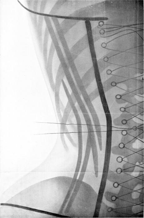 radio corset 04 462x700 Les corsets de 1908 au rayons X  technologie histoire bonus