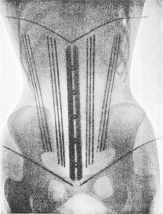radio corset 05 534x700 Les corsets de 1908 au rayons X  technologie histoire bonus