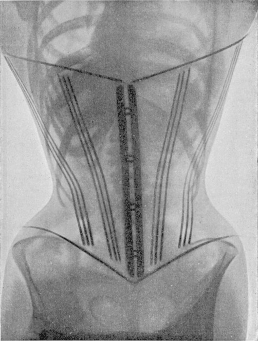 radio corset 06 530x700 Les corsets de 1908 au rayons X  technologie histoire bonus