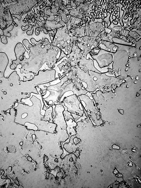 peau humaine au microscope