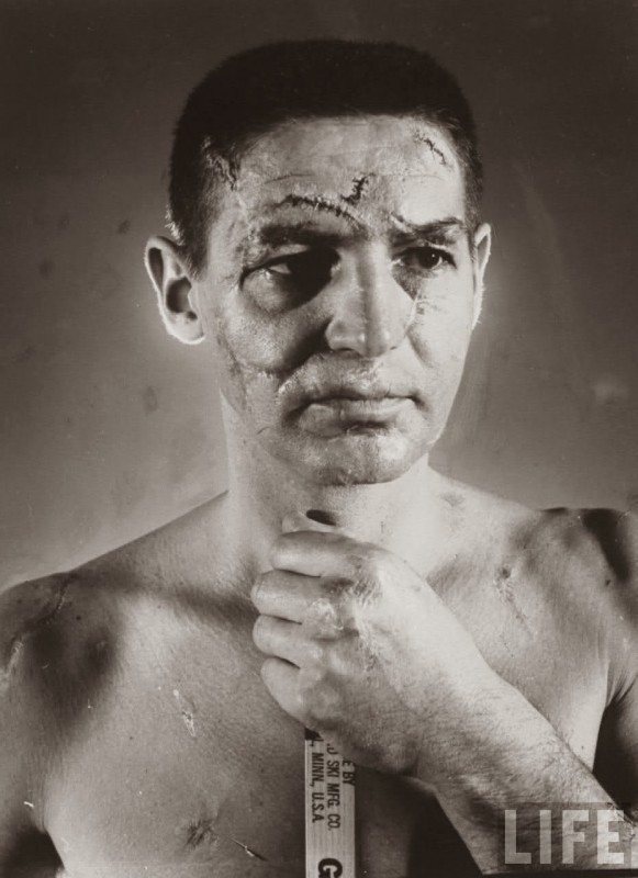 Terry Sawchuk The face of a hockey goalie before masks became standard game equipment, 1966