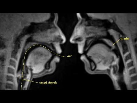 Des activités humaines à l'IRM