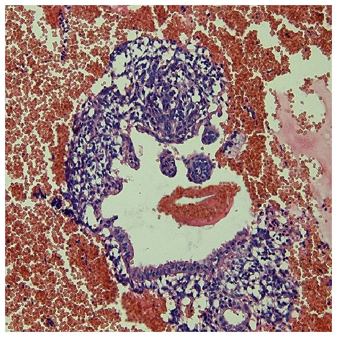 08-pareidolie-histologie