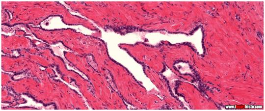 10-pareidolie-histologie