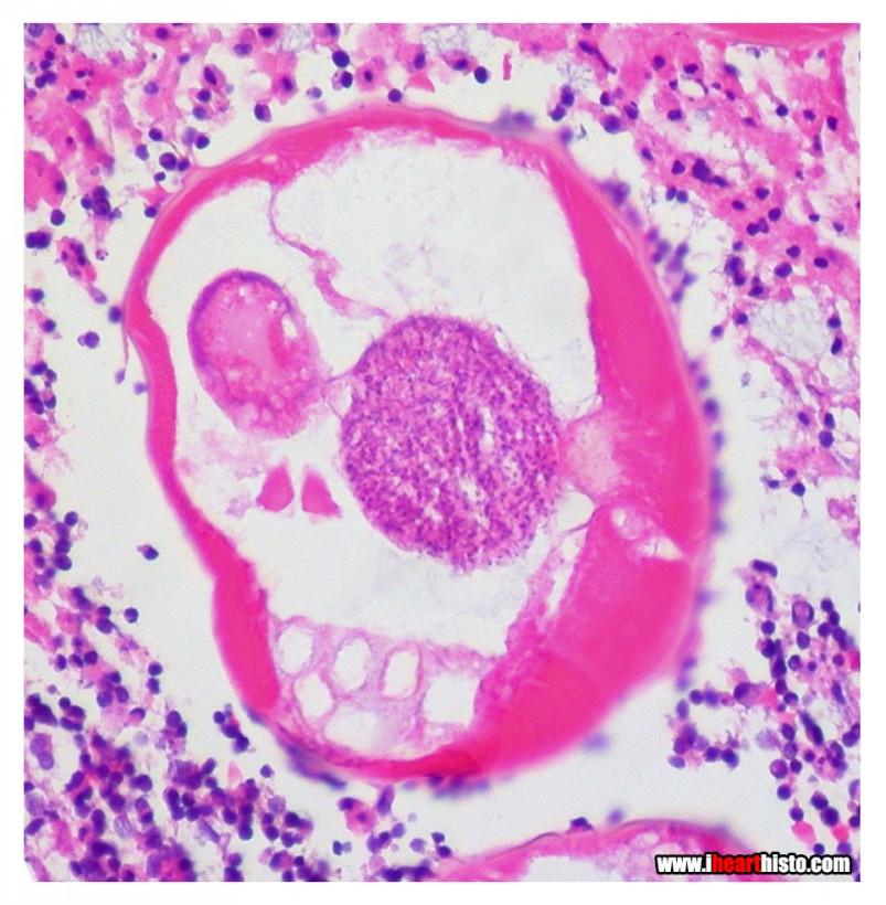 13-pareidolie-histologie