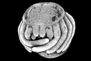 embryon-araigne