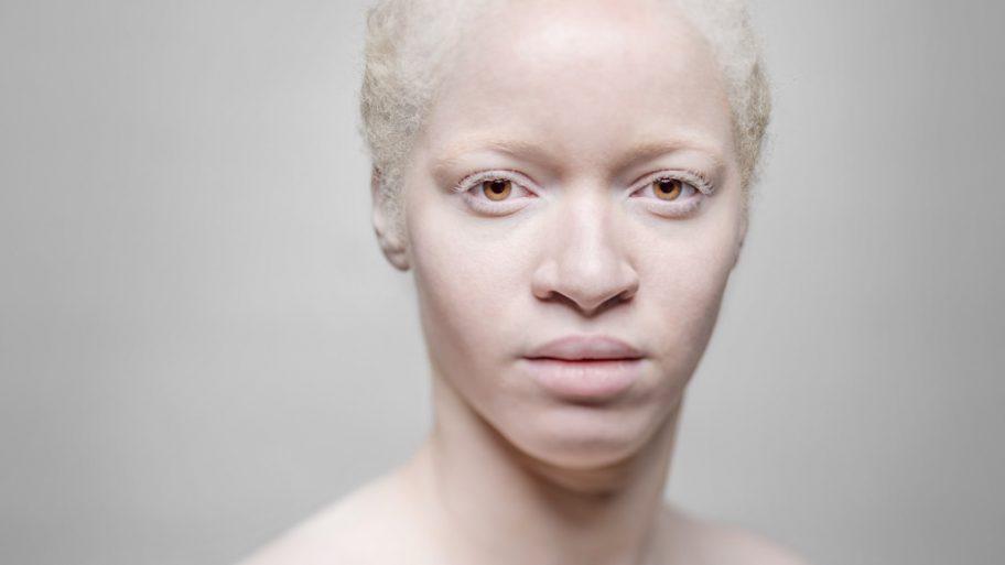 AlbinosAliceLeveque-1-1024x1024