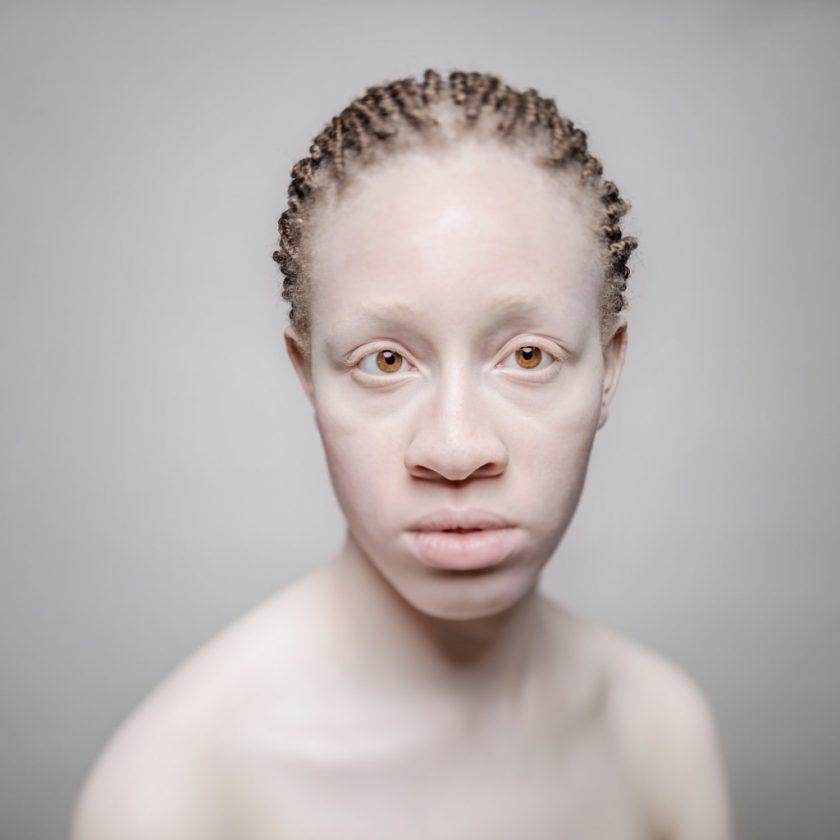 AlbinosAliceLeveque-2-1024x1024