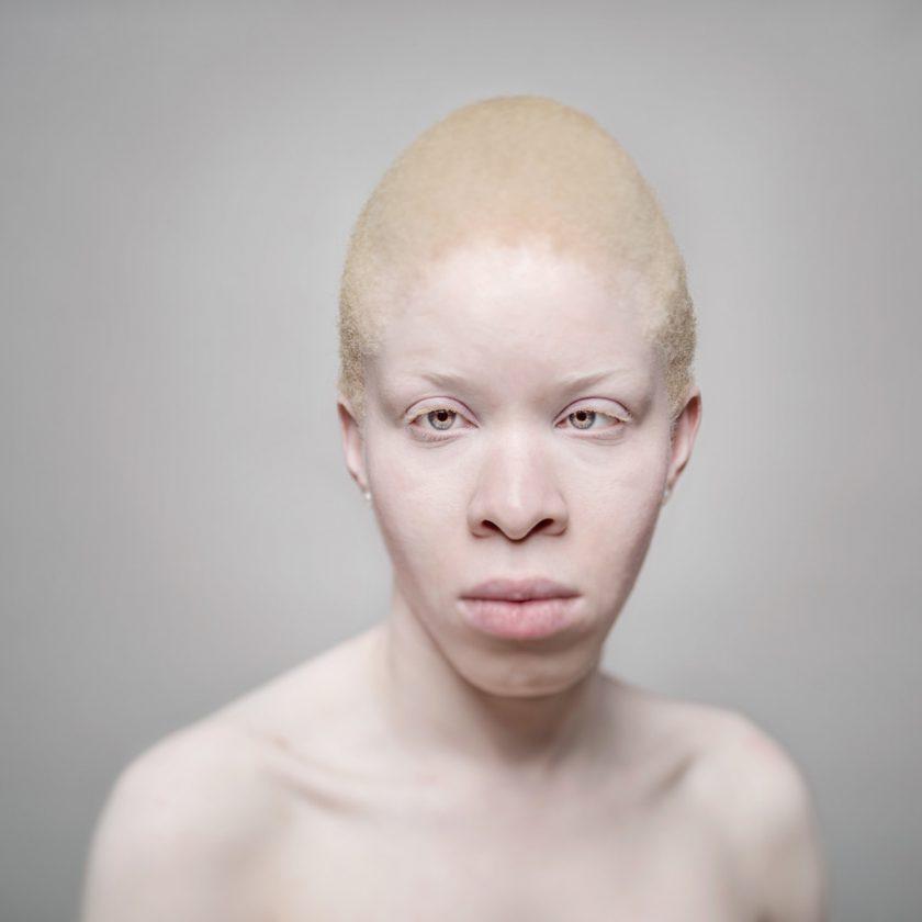 AlbinosAliceLeveque-3-1024x1024