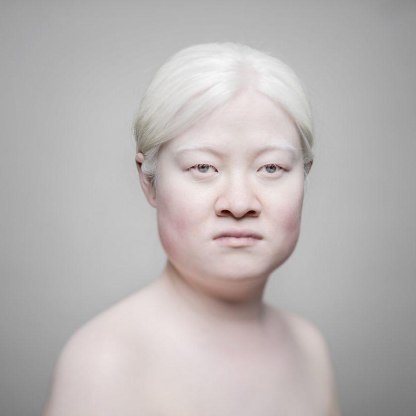 AlbinosAliceLeveque-4-1024x1024